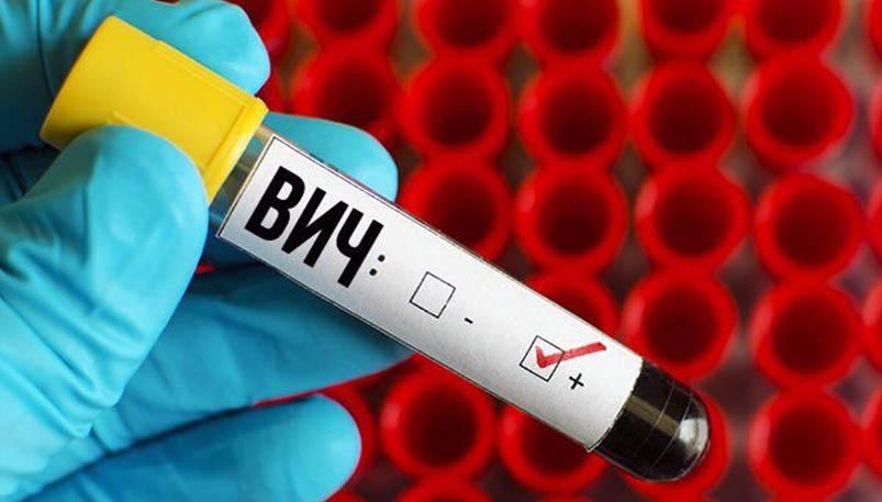 Photo of Заболеваемость ВИЧ в Брестской области в этом году снизилась на четверть
